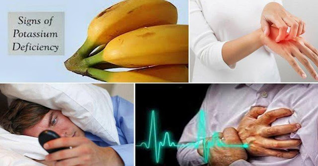 9 Symptoms of Low Potassium Levels