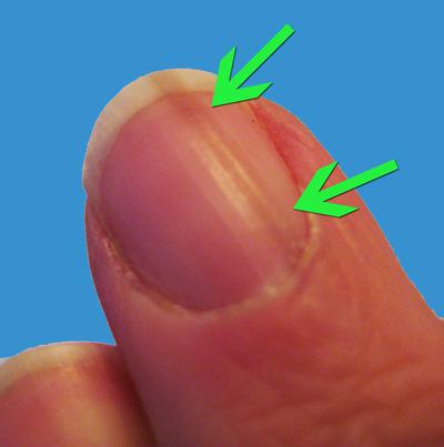 Melanoma Fingernails Dark Lines