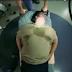 Ένα συγκλονιστικό βίντεο για την παχυσαρκία!!! (Βίντεο)