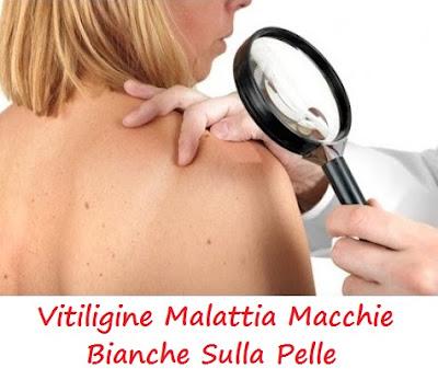 vitiligine-cura-definitiva-malattia-macchie-bianche-sulla-pelle