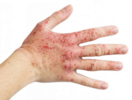 Stress Rash Pictures | Medical Pictures and Images - (2020 ...