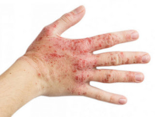 Clusters of rashes on a patient's hand stress rash images