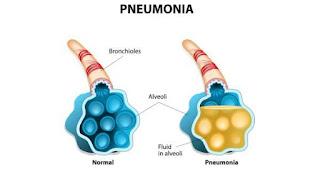 Batuk Pilek Biasa Apabila Tidak Segera Diobati Dapat Menjadi Pneumonia