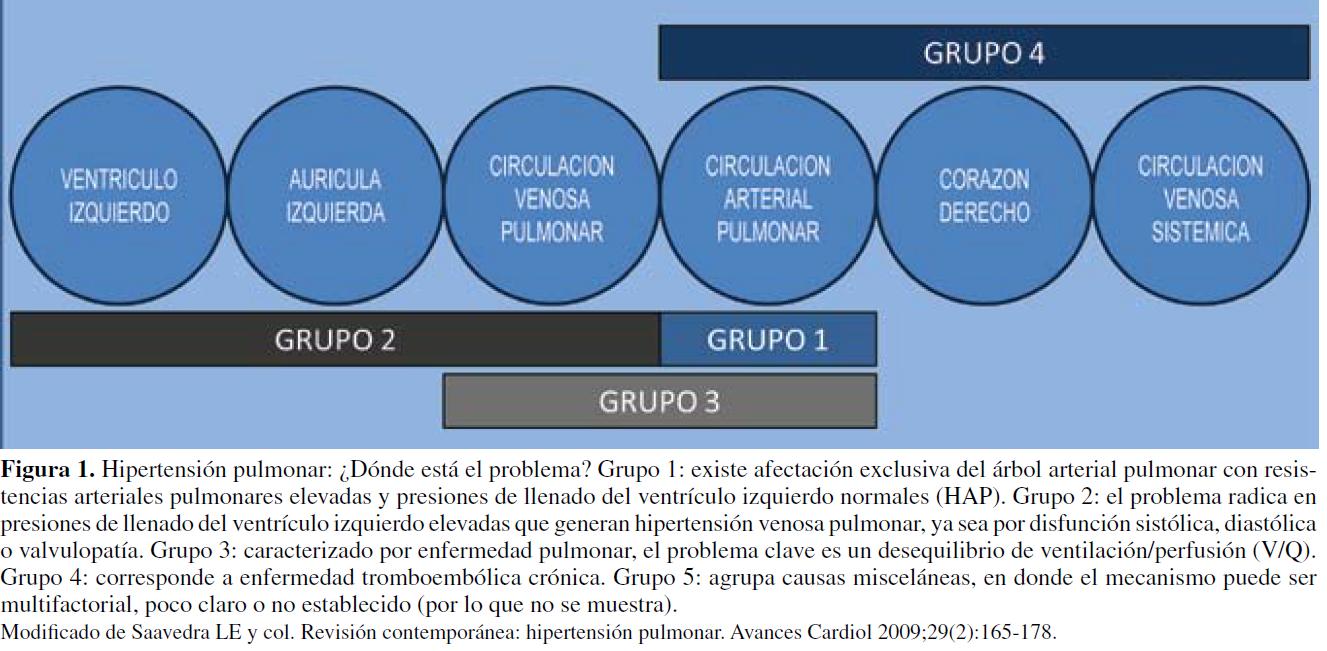 Cardiología Neuquina: HIPERTENSION PULMONAR