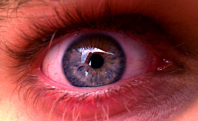 Obat Mata Merah Dan Berair Alami