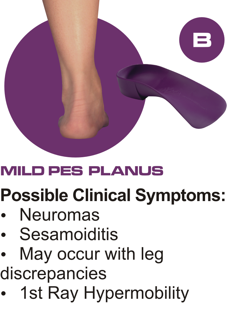 d22bb6a7f5 About 30% of the population has two different foot-types, this means that  you would need two different orthotic styles, it doesn't make sense to have  ...