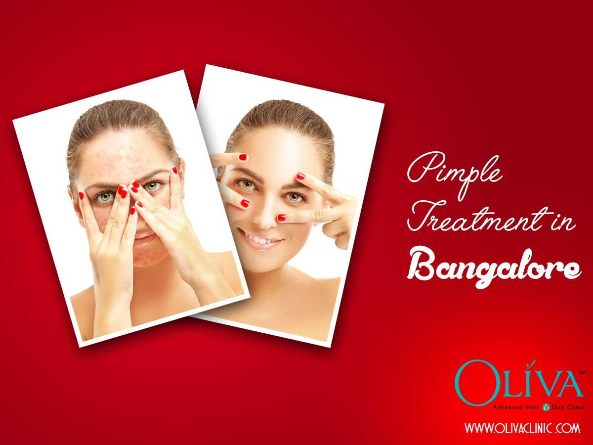 Best acne treatment with superficial chemical peel in bangalore has acne made you an indoor person do you prepare yourself to listen to hundreds of comments and suggestions on the pimple before you step out in public solutioingenieria Image collections