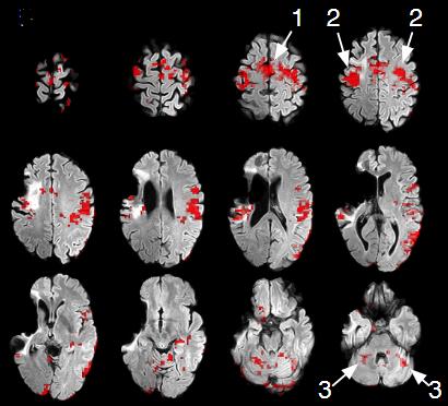 図:重症脳卒中のあと23年後に左手が動くようになった患者のfMRI