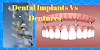 Dental Implants Vs Dentures - Which Is Best?