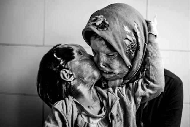 ام وطفلتها التي تبلغ 3 أعوام، بعد ان هاجمها زوجها ،وأحرق وجهيهما !