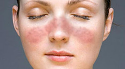 Cara Menyembuhkan Lupus Yang Sudah Lama