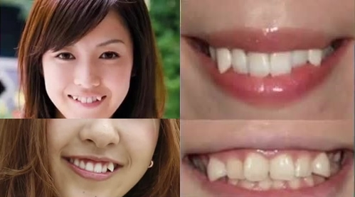 10 Very Bizarre Trends From Around The World 8. Yaeba Teeth