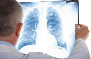 Asbestos, Mesothelioma Diagnosis - Not For The Faint-Hearted
