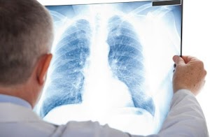 Asbestos, Mesothelioma Diagnosis - Not For The Faint-Listented