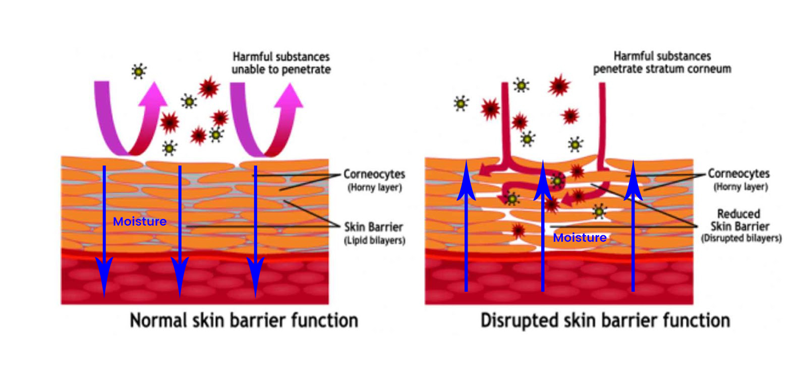 Skin Barrier Picture