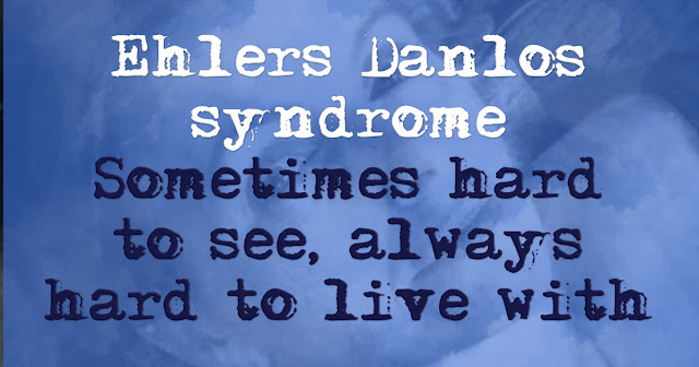 Ehlers Danlos syndrome. Sometimes hard to see, always hard to love with