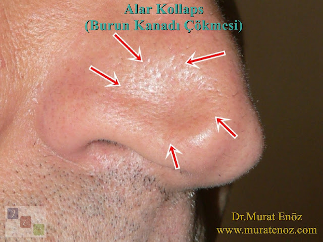 Nasal valve definition -  Nasal valve collapse - Nostril collapse - Alar collapse - Treatment of nasal valve collapse - Treatment of alar collapse - Nasal valve collapse surgery - Repair of nasal valve collapse - Nasal valve collapse operation