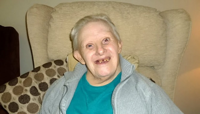 Kisah Kenny Seorang Penyandang Down Syndrome Tertua Di Dunia