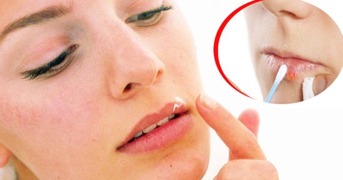 Penyebab, Gejala Dan Cara Menyembuhkan Herpes Simpleks Dan Pencegahannya