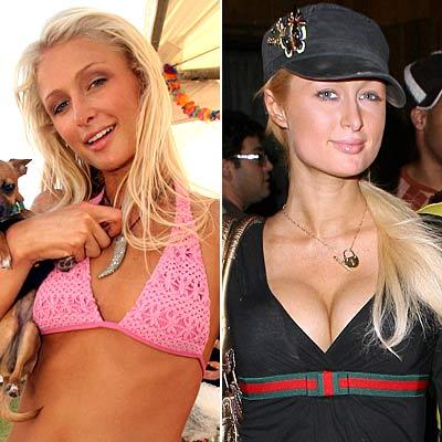 paris hilton gets breast implants jpg 422x640