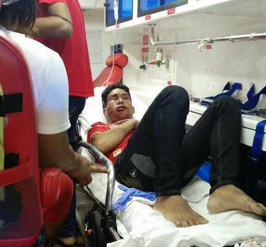 CĐV Myanmar bị đánh sưng mặt sau trận thua Malaysia
