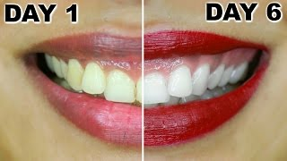 How To Whiten Teeth At Home | HiSmile Review