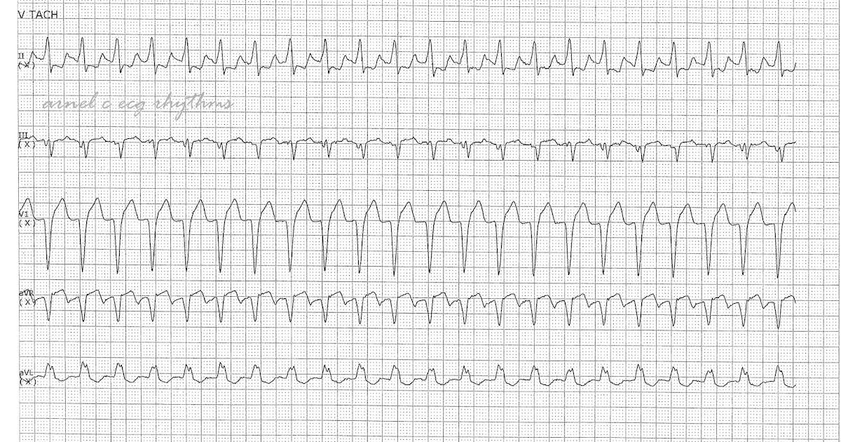ECG Rhythms: Wide QRST: VT or not?