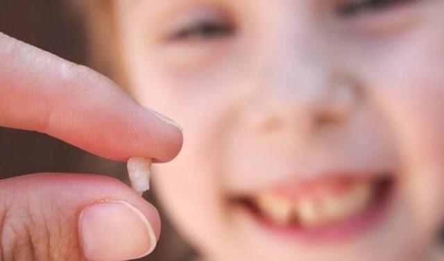 Pasti beberapa dari kau sudah usang mengalaminya Gigi Susu Copot? Ini Alasan Mengapa Kamu Harus Menyimpannya
