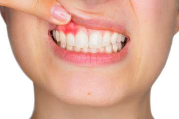 7 Vitamins and Minerals for your Healthy teeth