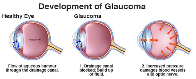 Glaucoma progression chart