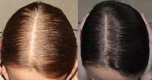 علاج الصلع الوراثي للنساء بالاعشاب والخلطات السحرية للقضاء علي تساقط الشعر