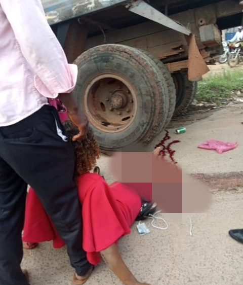 Beautiful Lady's Leg Crushed By Truck On Her Way To Work