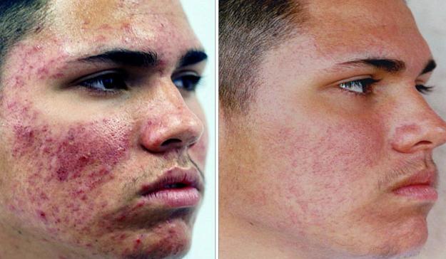 Whole Foods Acne Scar Treatment