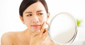 10 Easy and Natural Ways to Get Rid of Acne