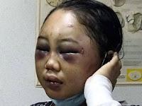 Ini Kisah Kekerasan terhadap TKW di Malaysia, Singapura, dan Hong Kong