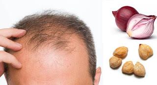 Masalah Rambut, Perawatan Rambut, Rambut Rontok, Tips Rambut,