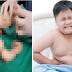Sering mengeluh sakit perut, dokter temukan janin di tubuh bocah ini