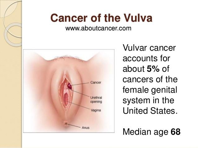 """VULVAR CANCER: Isang uri ng kanser sa iyong """"ARI"""", hindi mo pa naririnig ngunit kailangang malaman"""
