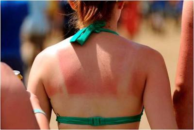 skin_cancers_risen_265_percent