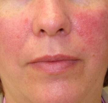 Obat gatal aman pada muka atau wajah tanpa efek samping ...