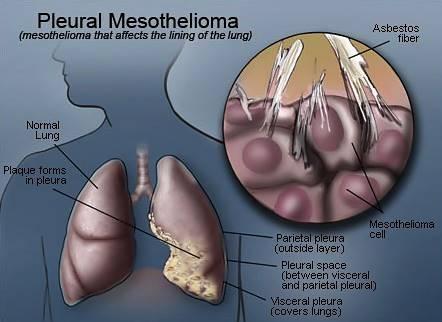 Pleural Mesothelioma Treatment