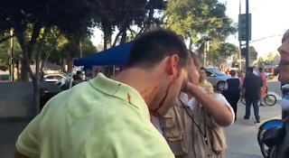 Trump Supporter Left Bleeding After Being Attacked By Mob Outside San Jose Rally