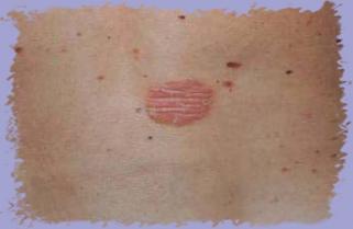 Псориаз лечение в домашних условиях фото отзывы мази и крема