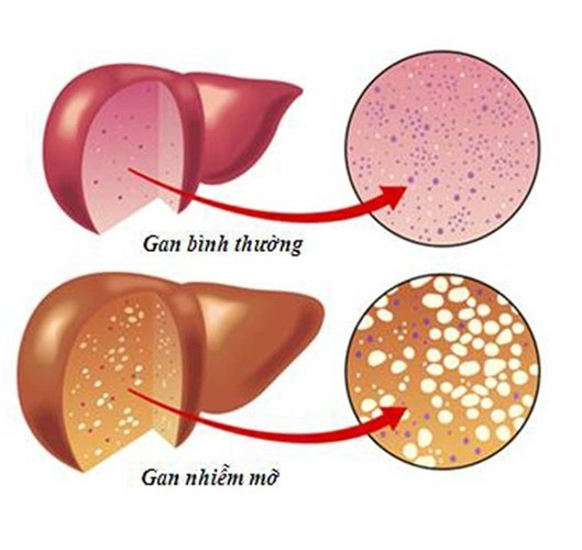 10 nguy cơ và dấu hiệu bệnh gan