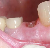 Extraction de dents infectées