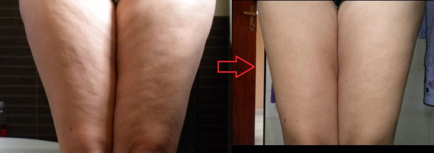 Jak schudnąć z brzucha - koktajl chia diety i ich sekrety