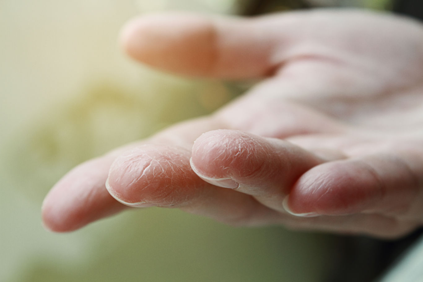 Dry Skin? Don't Always Blame it on Diabetes  Dryskinfingers