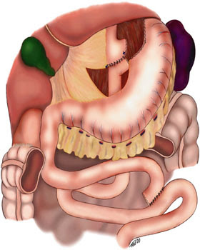 A gastric bypass is a surgery in which the stomach is reduced and the digestive tract is  Gastric Bypass Surgery : What Is A Gastric Bypass ?
