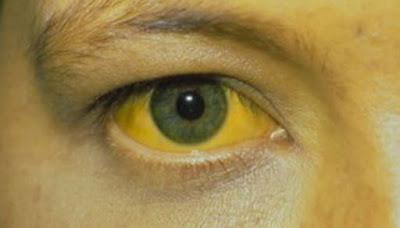 mata kuning akibat demam kuning