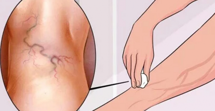 8 Simple Exercises To Treat Varicose Veins